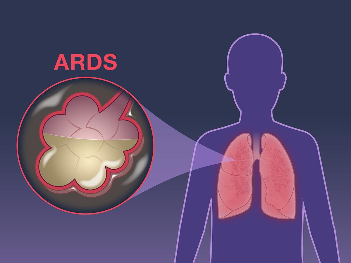 ards sindrome distress respiratorio polmoni