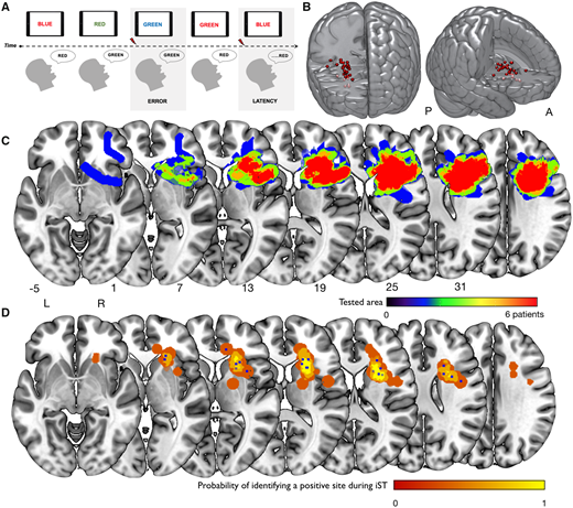 Scoperte connessioni cruciali alla base delle funzioni di controllo cognitivo