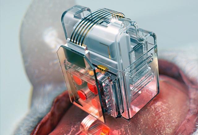 Impianto neurale comandato dallo smartphone