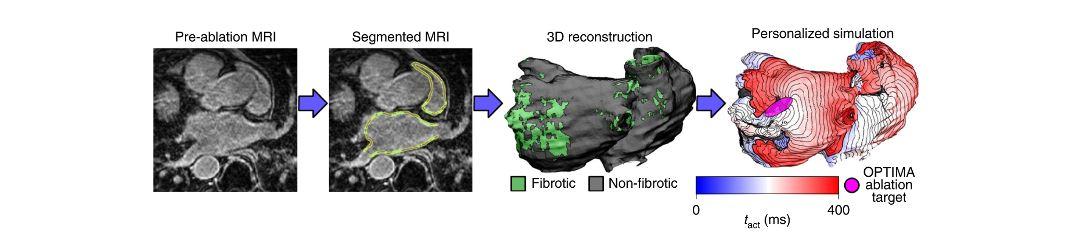 Ricostruzione optima cuore fibrillazione atriale