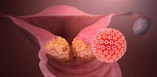Papilloma virus: arriva il primo test per autodiagnosi disponibile in farmacia