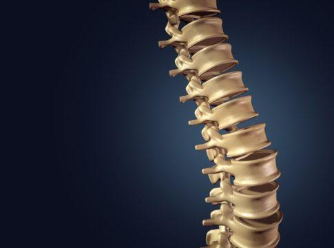 Eseguito al Rizzoli il primo trapianto al mondo di vertebre umane