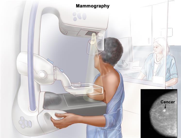 tumore seno mammografo mammografia prevenzione ottobre