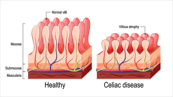 Celiachia. Credits: Shutterstock