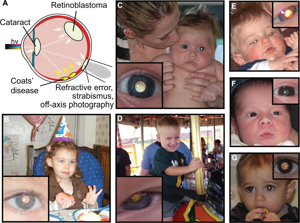 cradle app occhio malattia bambini leucocoria