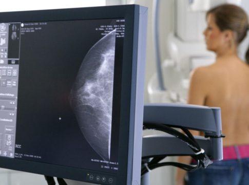 tumore al seno prevenzione ottobre mammografi mammografia