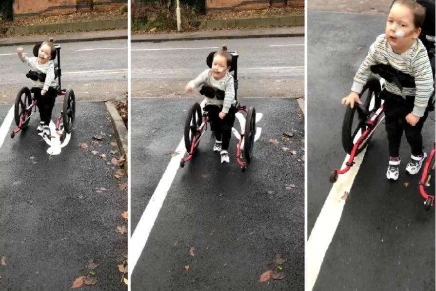 bambino compie primi passi rizotomia dorsale selettiva paralisi cerebrale