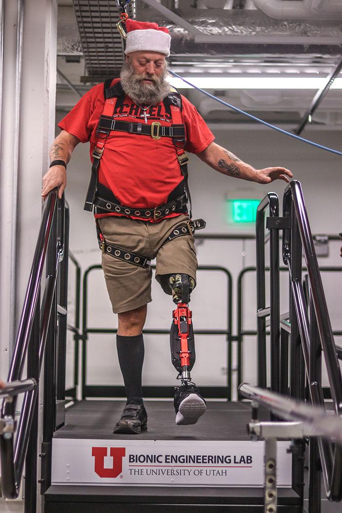 Kerry Finn protesi gamba progetto Bionic Leg utah