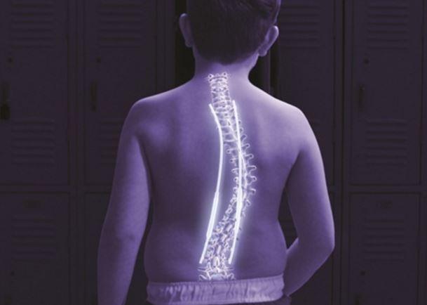 roma scoliosi bambino barre magnetiche