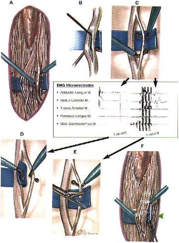 Rizotomia dorsale selettiva paralisi cerebrale infantile
