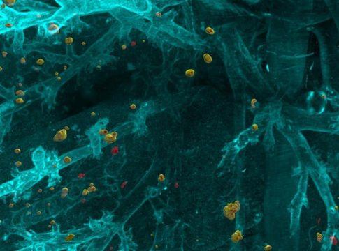 Grazie all'intelligenza artificiale sarà possibile rilevare le metastasi invisibili