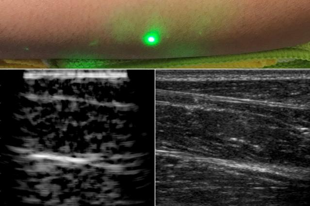 Ecografia tramite laser ad ultrasuoni. Credits: MIT