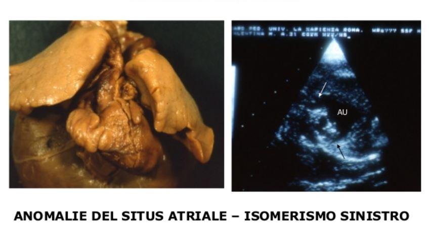 isomerismo sinistro cuore bambina genova gaslini