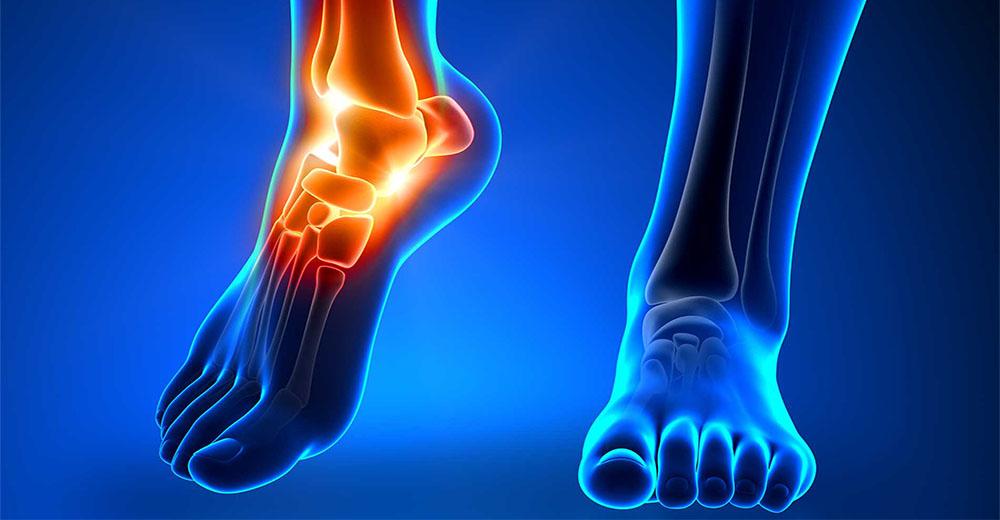 Caviglia stampata in 3D: primato mondiale per il Rizzoli di Bologna
