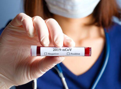 Coronavirus: quanti test ha fatto l'Italia?