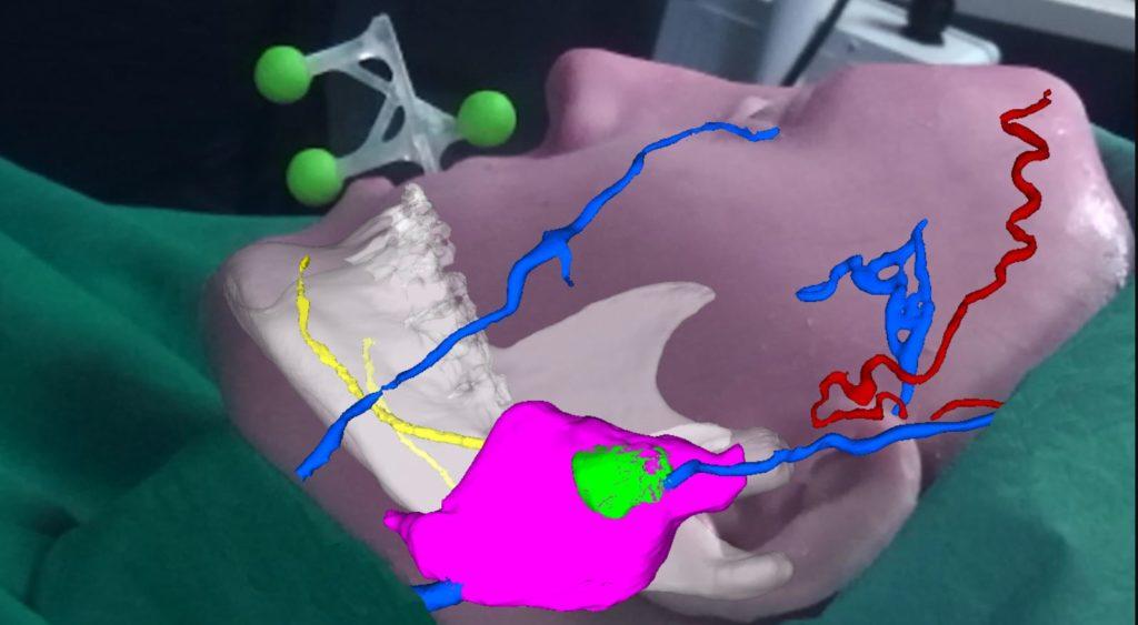 vostars realtà aumentata bologna pisa visore ar intervento sala operatoria