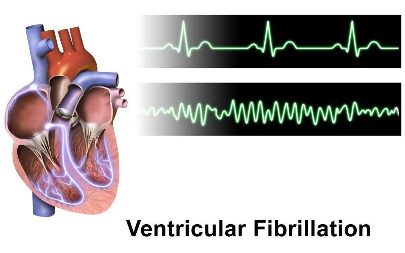defibrillatore indossabile morte cardiaca improvvisa