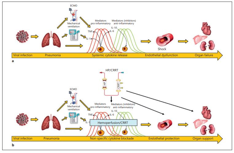 Covid-19 filtrazione sangue