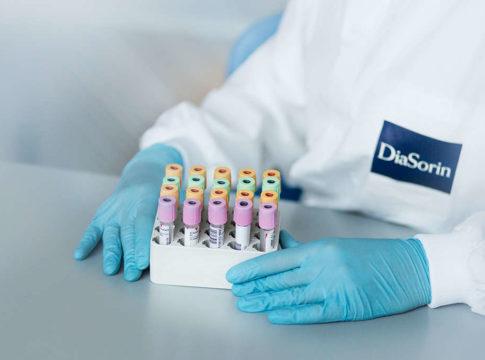 Coronavirus: DiaSorin, un'eccellenza italiana per la diagnostica. Credits: DiaSorin