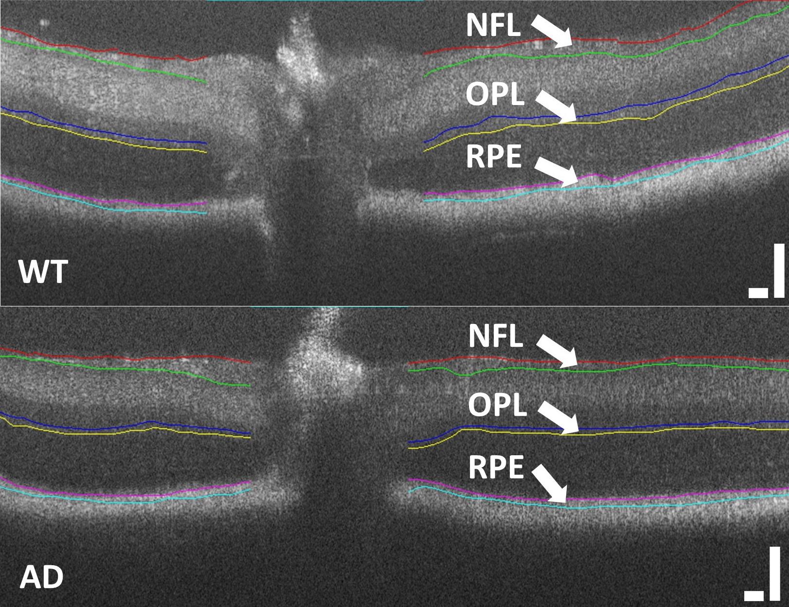 Biomarcatori retinici per la diagnosi precoce della malattia di Alzheimer. Credits: Scientific Reports
