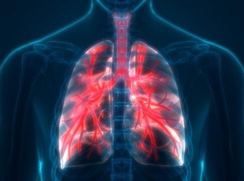 Covid-19, a Milano trapianto di polmoni salva un ragazzo di 18 anni