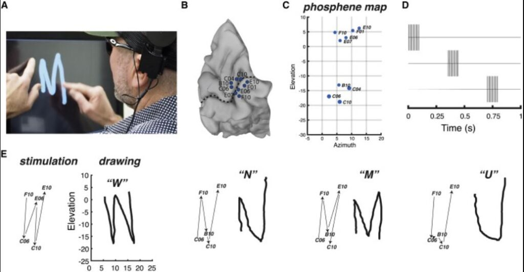 cecità cervello occhio elettrodi fosfeni