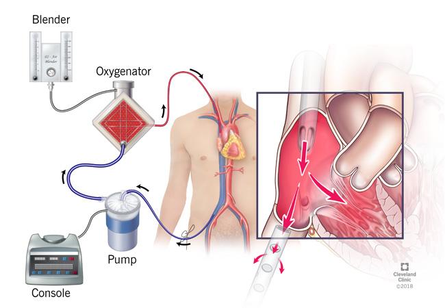Trapianto di fegato: organo tenuto in vita per quasi un giorno prima dell'operazione.