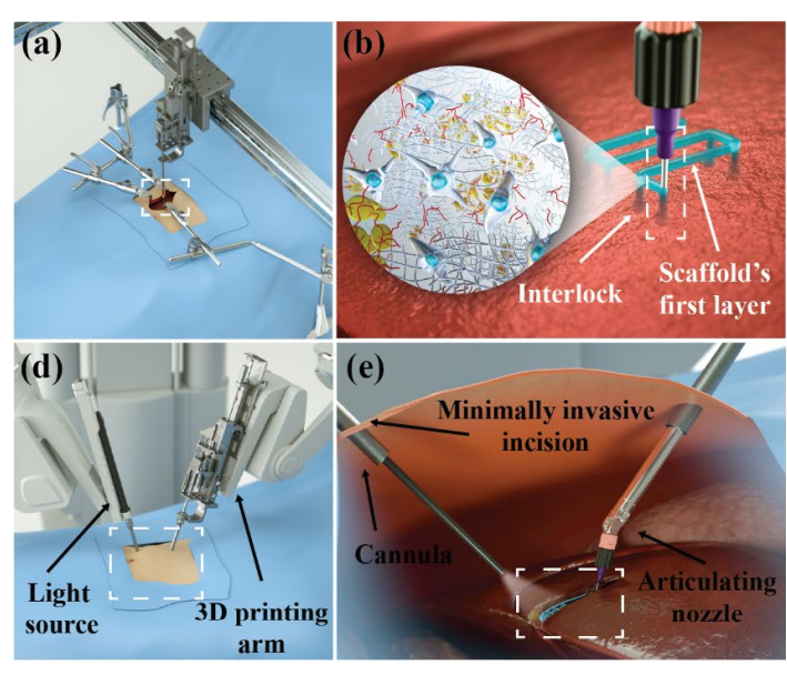 Nuovi traguardi nella stampa 3D: ora è possibile anche all'interno del corpo