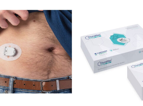 Arriva il cerotto digitale per monitorare la glicemia con lo smartphone