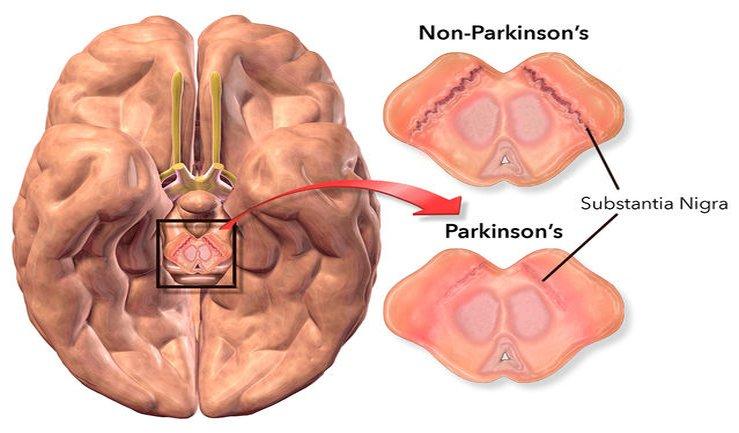 parkinson molecole frenano l'avanzare della malattia