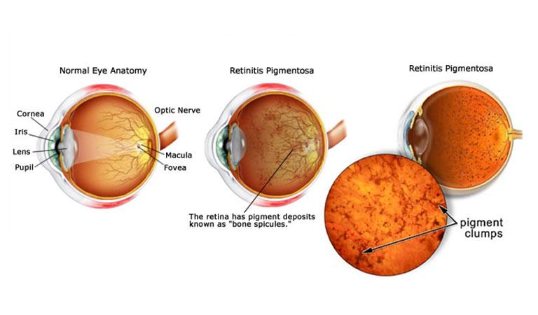 retina artificiale liquida IIT italia retinite pigmentosa credits: irisvision.com