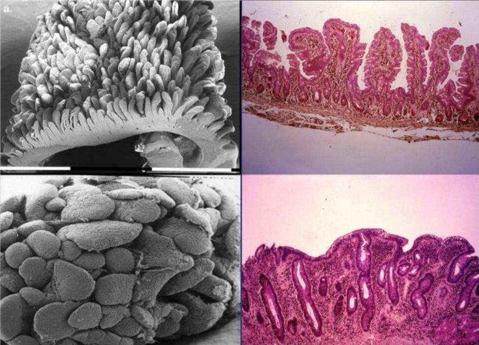 Il glutine fa male solo ai celiaci e la celiachia è una malattia. Credits: Green PH, Cellier C. Celiac disease.