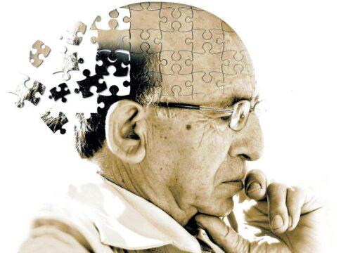 rotigotina farmaco parkinson alzheimer funziona