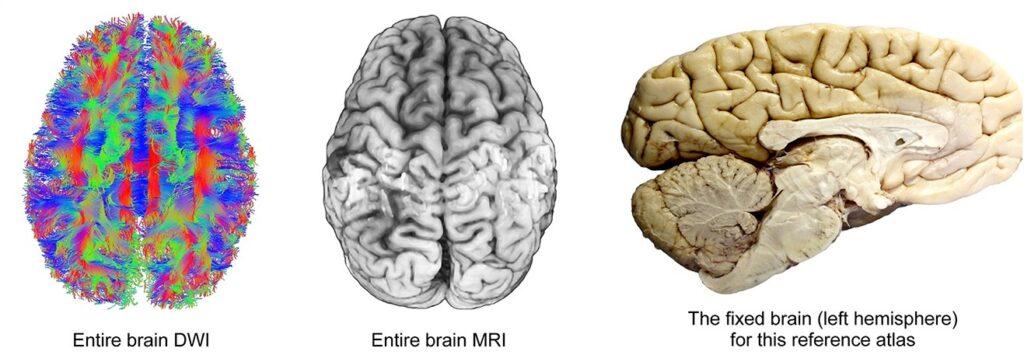 Il cervello artificiale: replicare in laboratorio il nostro organo più complesso. Credits: Wiley Periodicals