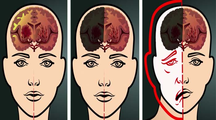danni cervello coronavirus