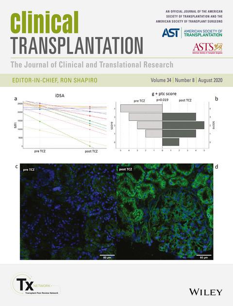 Scoperta alle Molinette: farmaco contro l'artrite riduce il rischio di rigetto del trapianto di rene. Credits: Clinical Transplantation