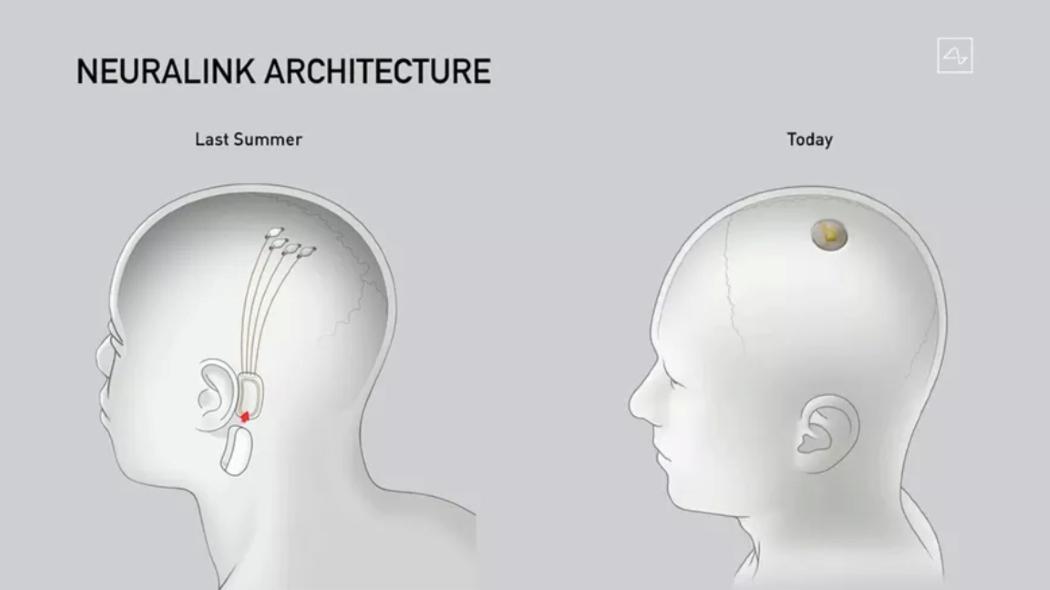 Elon Musk ha presentato i progressi del chip rivoluzionario di Neuralink. Credits: Neuralink