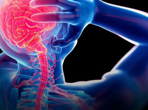neurostimolazione dolore cronico OMNIA segnali elettrici cervello
