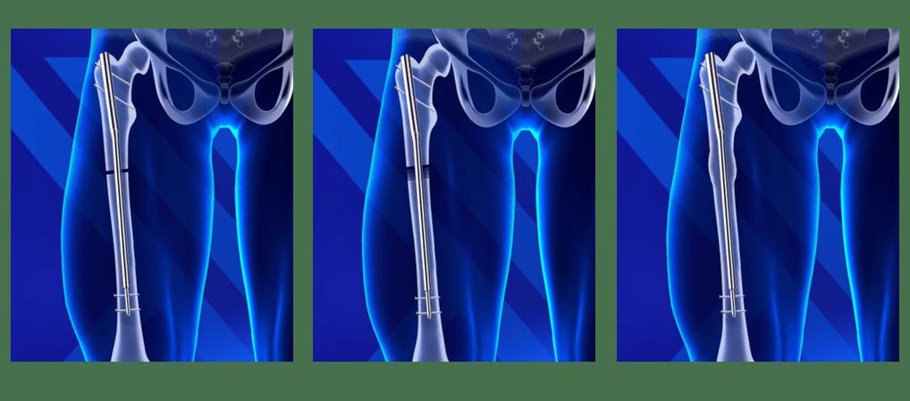 Applicazione della protesi Precice su un femore