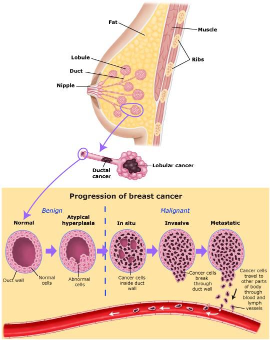 Tumore al seno: dal veleno delle api una nuova cura