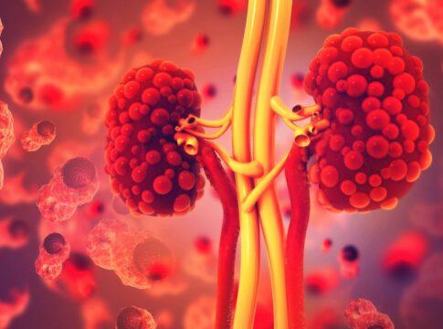 Tumore al rene: una nuova cura raddoppia la sopravvivenza