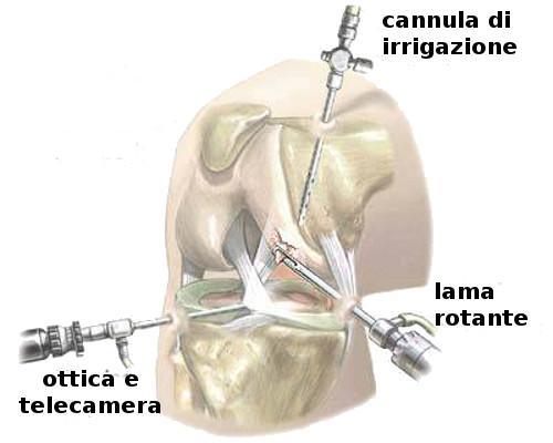 Rottura del legamento crociato, torna l'incubo per Nicolò Zaniolo. Credits: Fisioterapia Maniscalco