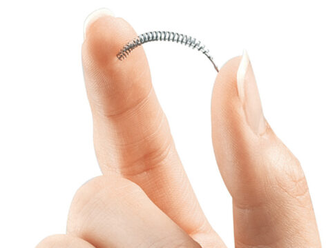 Essure anticoncezionale danni