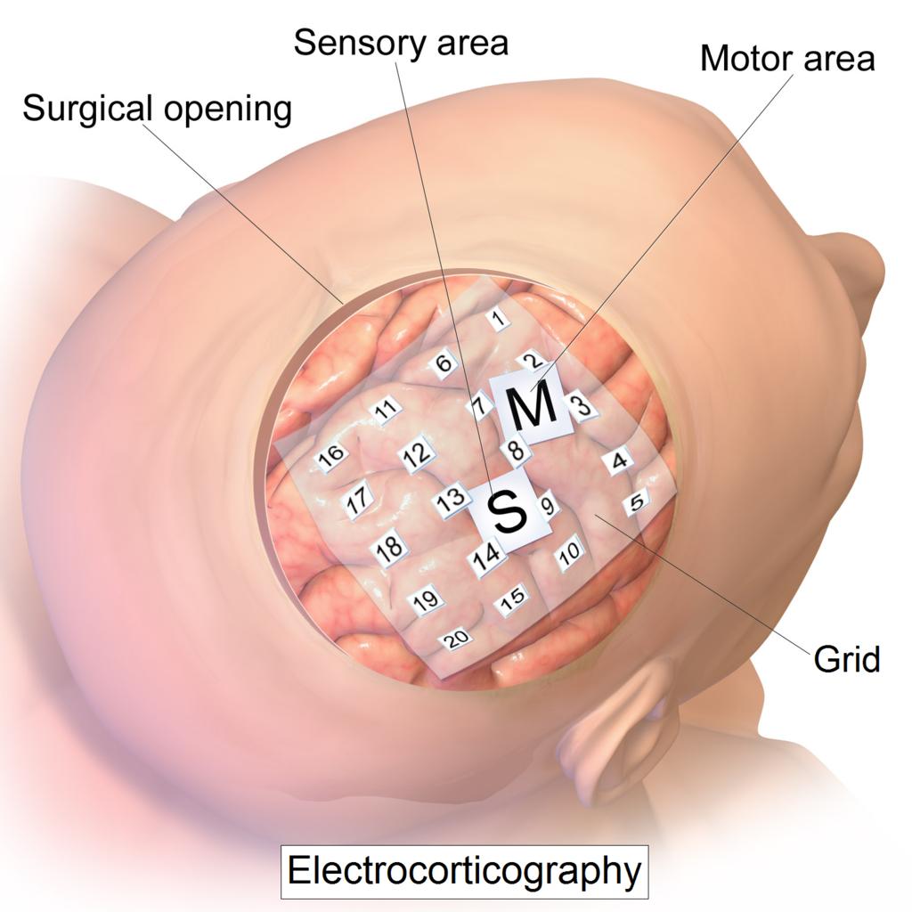 """Interfacce neurali: sviluppata la prima protesi cerebrale """"Plug-and-play"""". Credits: Blausen.com staff (2014)"""