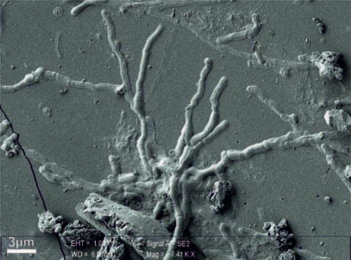 Ercolano: Scoperti neuroni perfettamente integri di 2000 anni fa