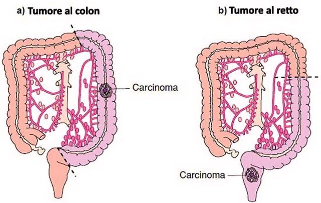 Tumore al colon-retto: un nuovo mix di farmaci ne rallenta la crescita