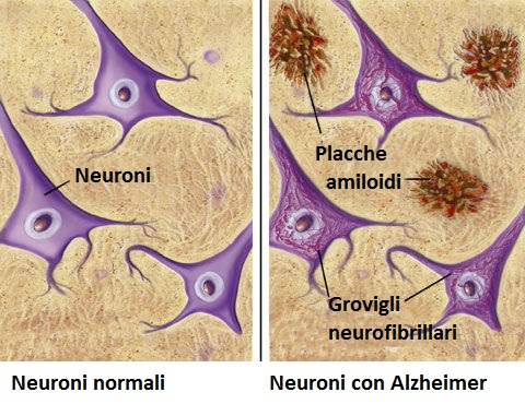 Alzheimer e Sindrome di Down, una triste relazione. Credits: PubMed