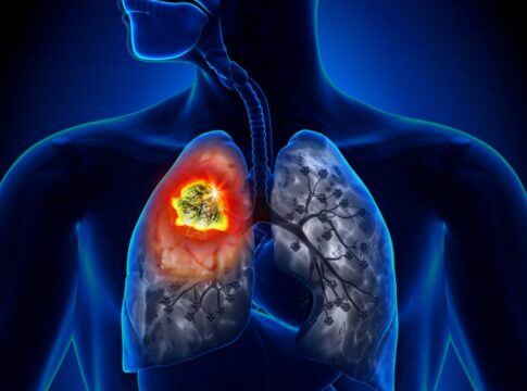 farmaco tumore polmoni