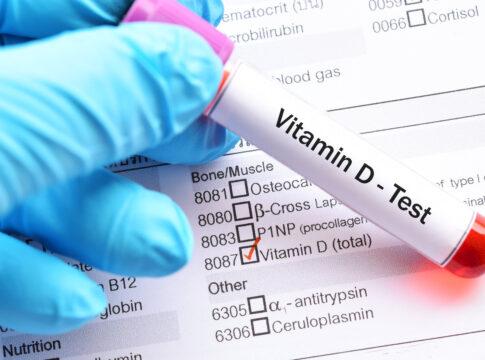 vitamina d covid