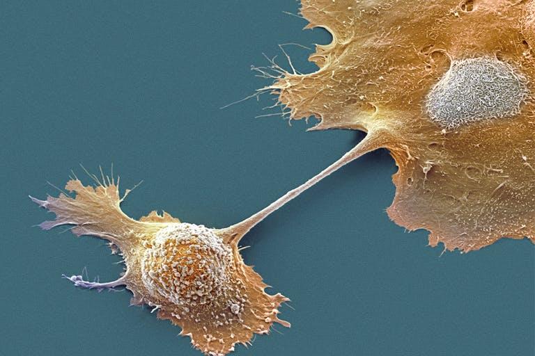 Tumore del pancreas: nuova strategia con vaccino e chemioterapia. Credits: Steve Gschmeissner / Science Photo Library